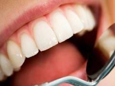 Carie e denti