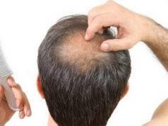 calvizie e perdita di capelli, soluzione prp