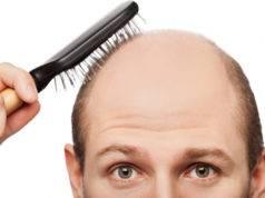 Calvizie, un disagio intimo. Da cura italiana nuove speranze per non perdere i capelli?
